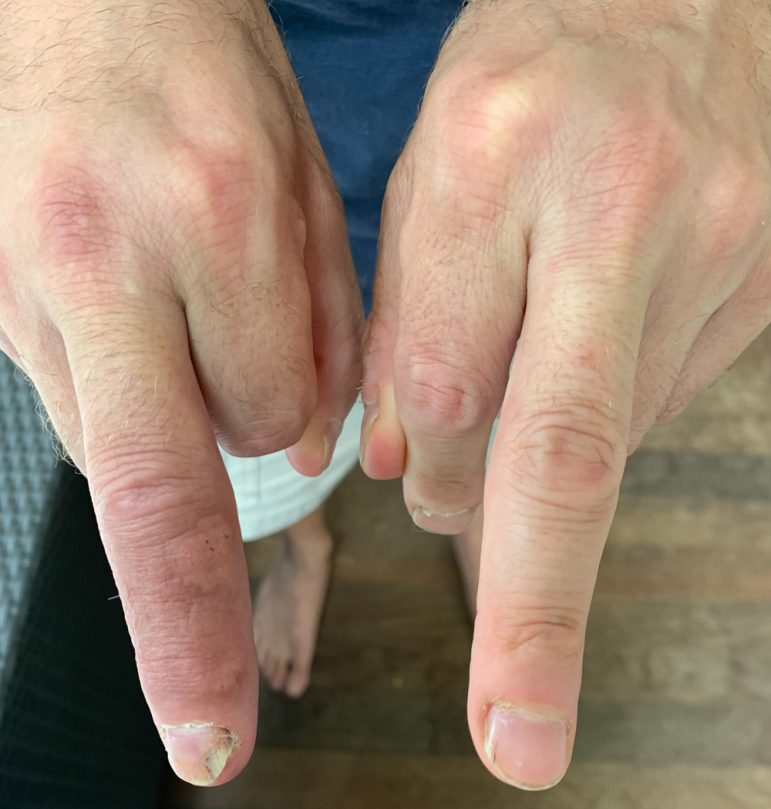Neal's Finger Today